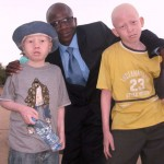 john with some albino kids who escaped death
