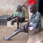 lepers and cripples at a center where they depend on handouts to survive, as you can see no legs yet surviving